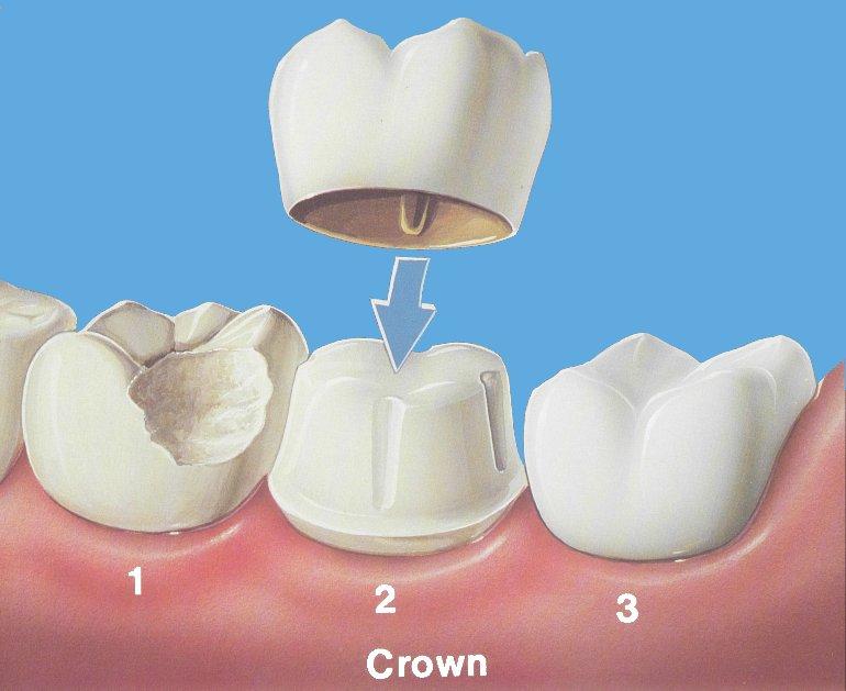 Put A Cap On It ... Dental Crown And Bridge Explained 880da4a1f65